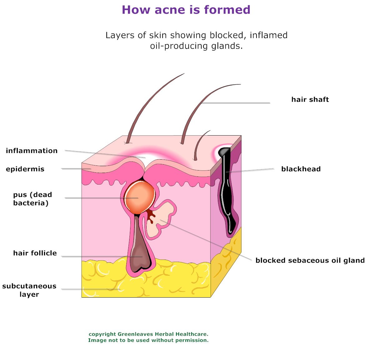 Information and tips for treating acne the living pharmacy there sebum a waxy substance that lubricates the skin and prevents unnecessary water loss builds up sebaceous glands are concentrated on the face pooptronica